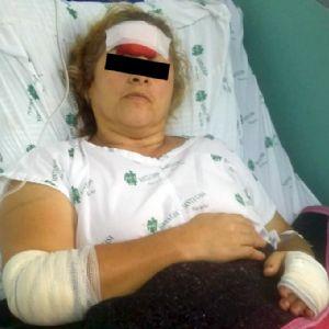 Mulher é esfaqueada pelo ex-marido na frente da filha na Nova Pilar